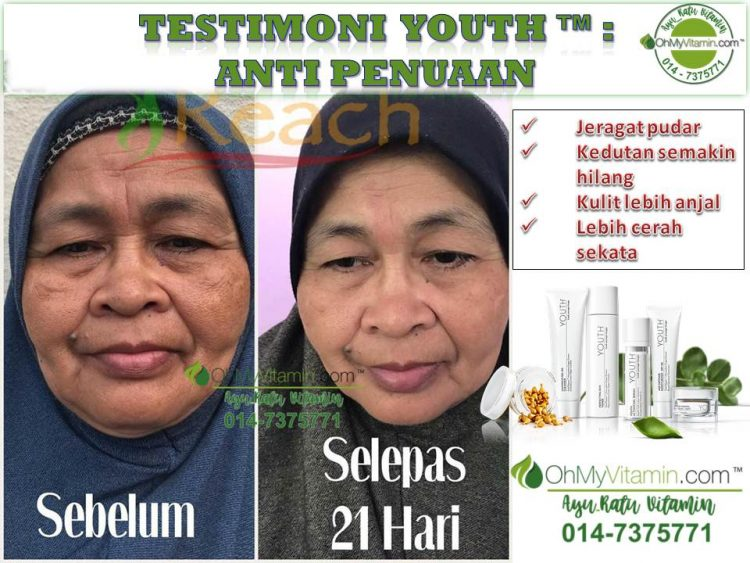 TESTIMONI YOUTH SKINCARE ANTI PENUAAN
