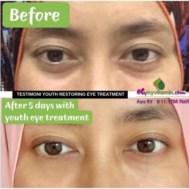 TESTIMONI YOUTH RESTORING EYE TREATMENT