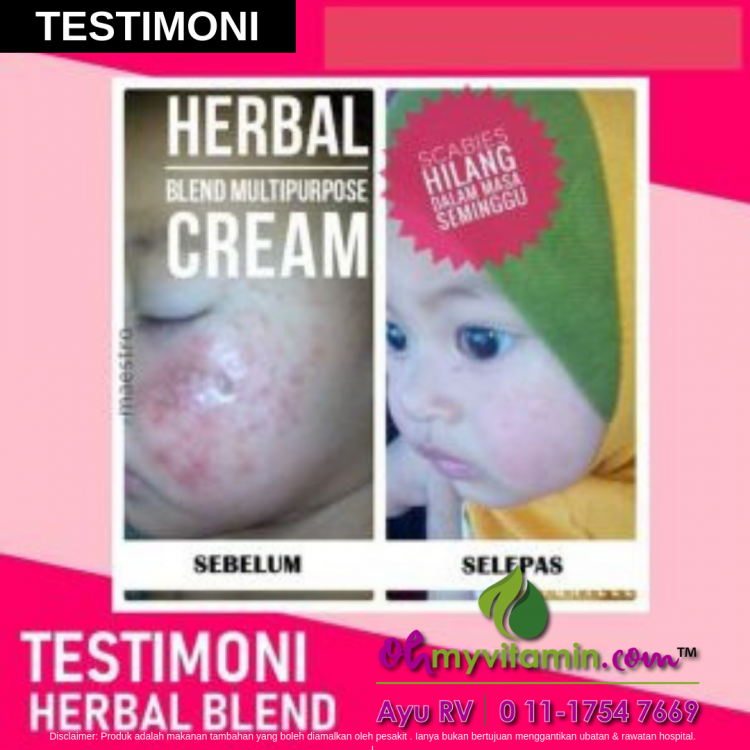 testimoni baik dari ruam susu dengan herbal blend multi-purpose cream